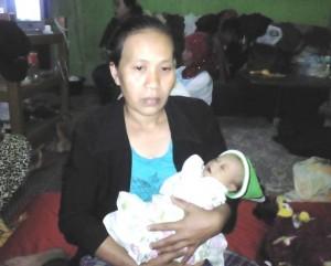 Bayi Terlahir Tanpa Anus